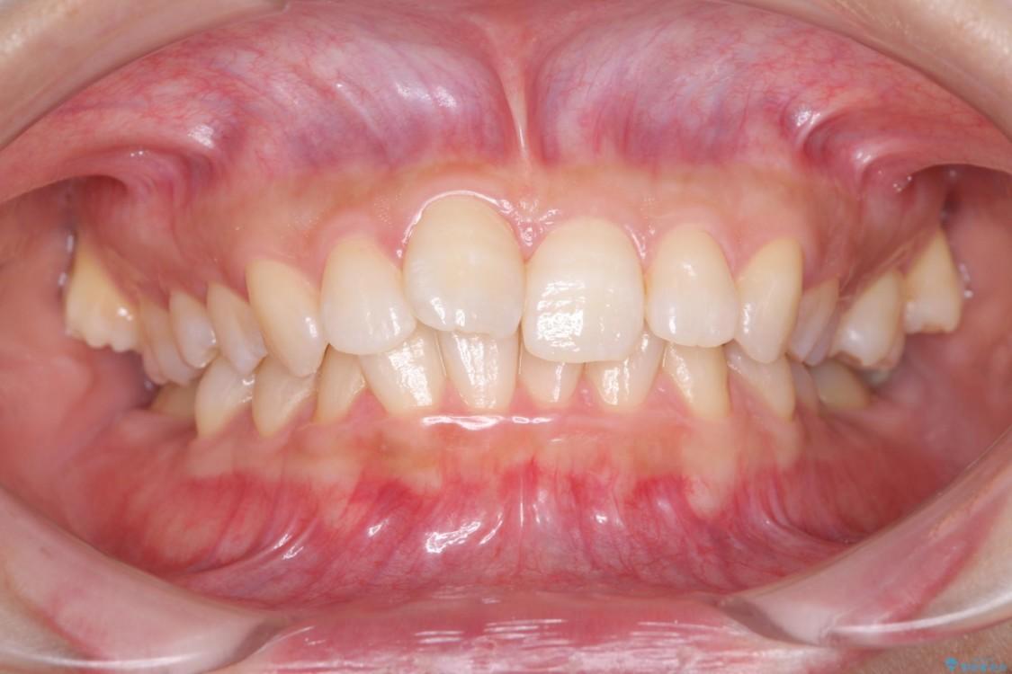 倒れた奥歯を改善 インビザラインでの矯正治療 ビフォー