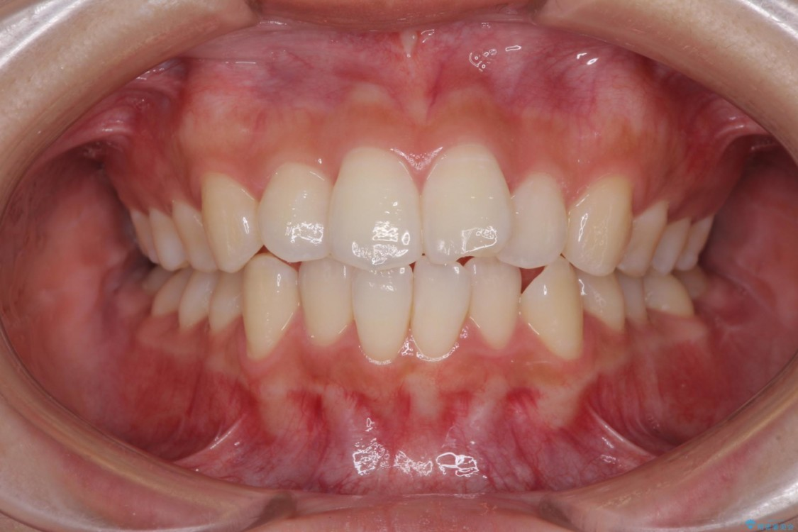 前歯のデコボコと突出感を改善したい インビザラインによる矯正治療 ビフォー