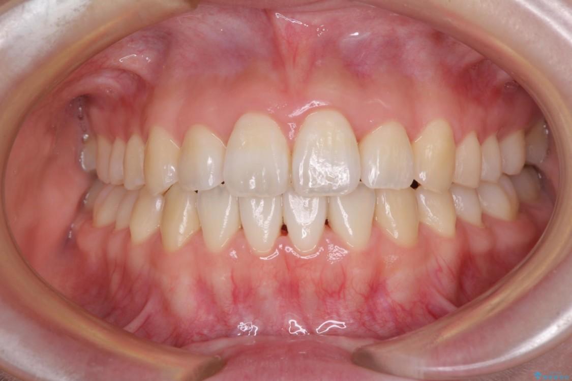 インビザラインで気になる前歯を綺麗に整える アフター