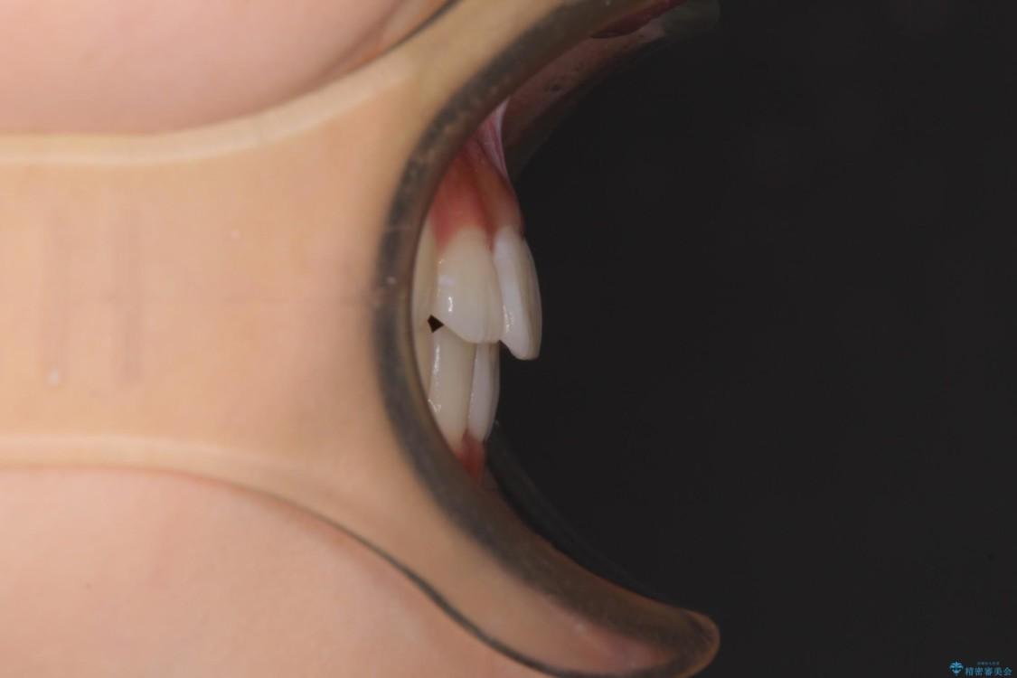 気になる前歯を整えたい インビザライン・ライトでの矯正治療 アフター