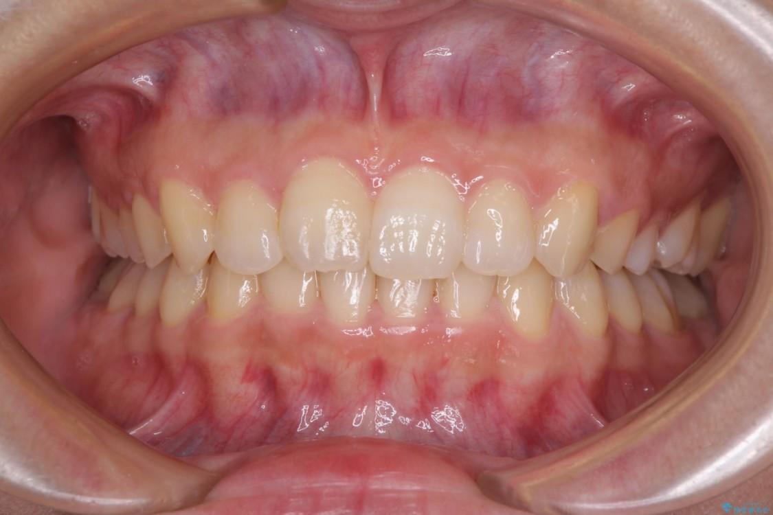 倒れた奥歯を改善 インビザラインでの矯正治療 アフター
