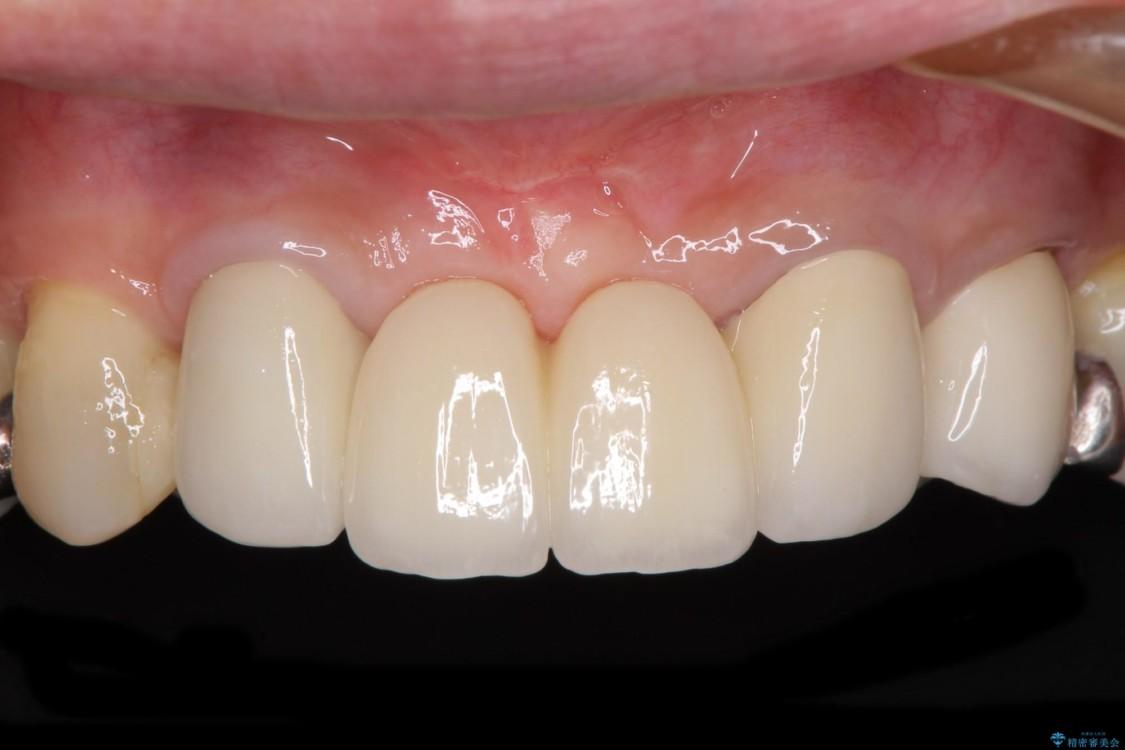 他院で入れた仮歯が不快 当院で使用感の良いオールセラミックブリッジに アフター
