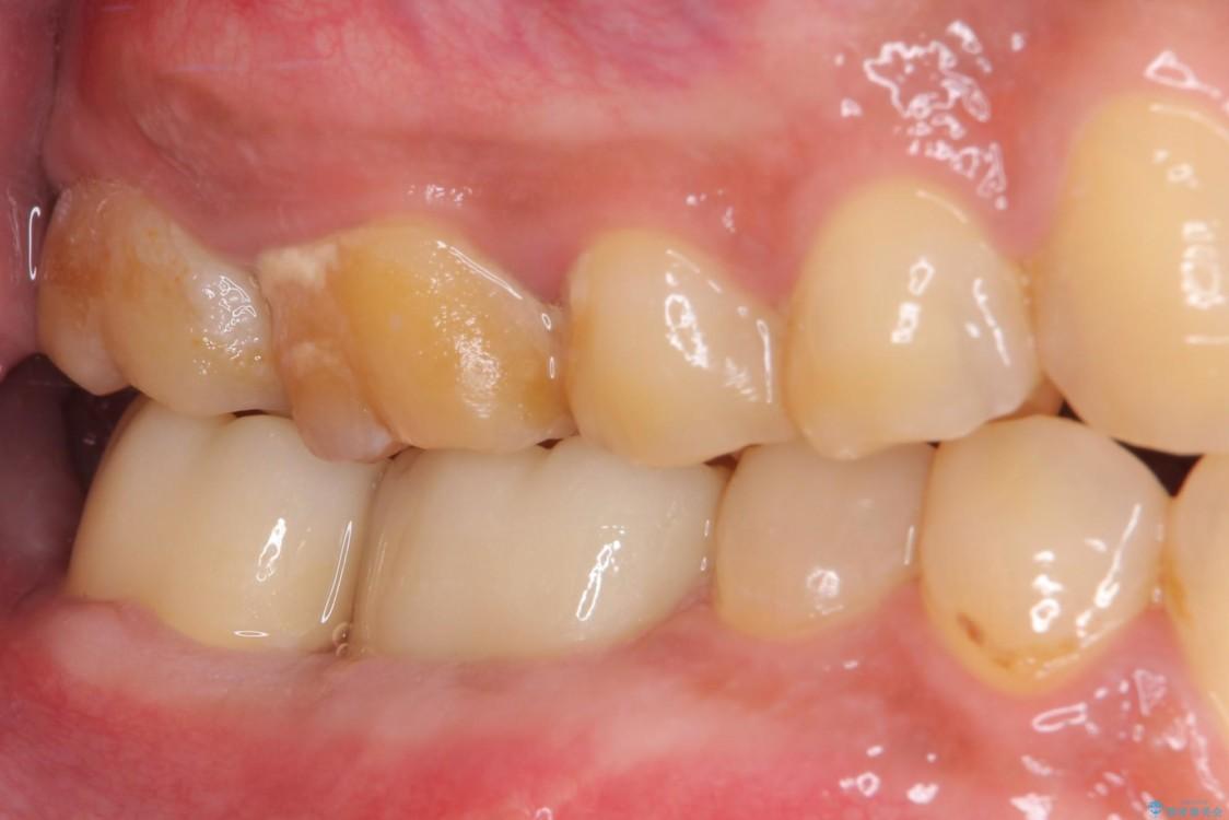 骨の中にまで及んだ深い虫歯 歯周外科処置を用いた補綴治療 治療後画像