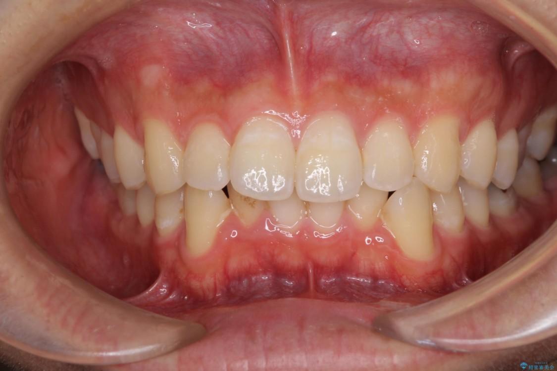 口が少し閉じにくい インビザラインによる非抜歯矯正 ビフォー
