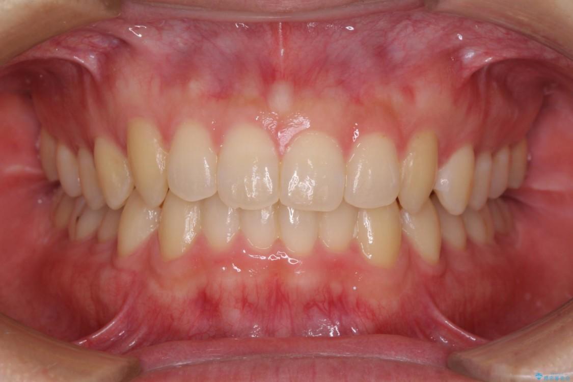 前歯の咬み合わせとデコボコを解消 インビザラインによる矯正治療 アフター