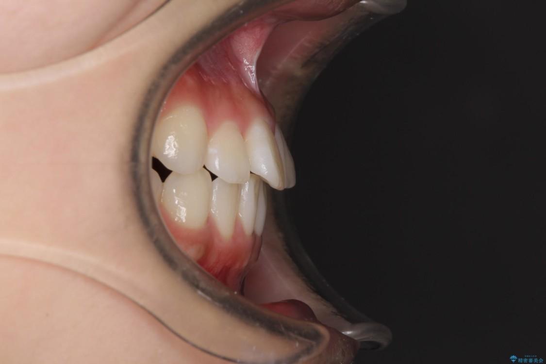 気になる前歯を整えたい インビザライン・ライトでの矯正治療 ビフォー