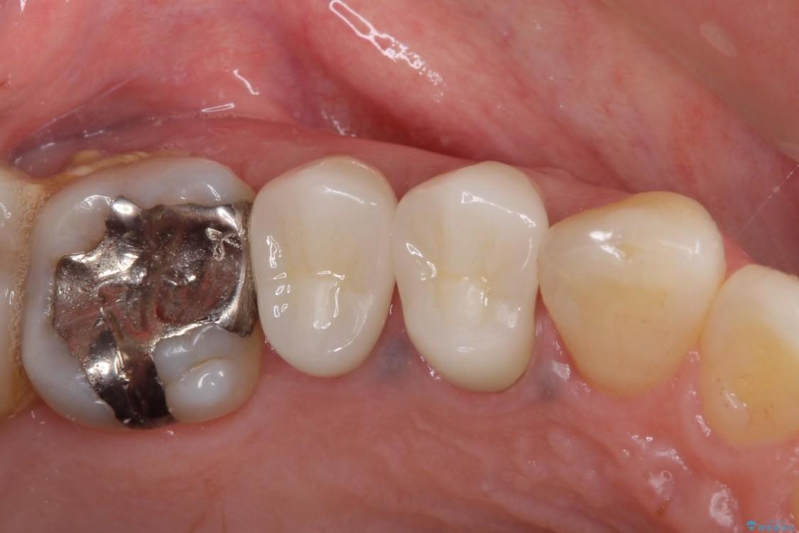 治療途中で放置していた歯 オールセラミッククラウンによる補綴治療 アフター