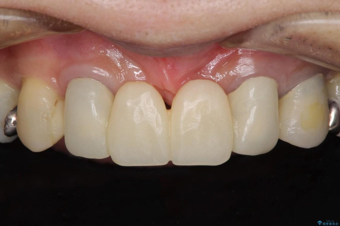 他院で入れた仮歯が不快 当院で使用感の良いオールセラミックブリッジに ビフォー