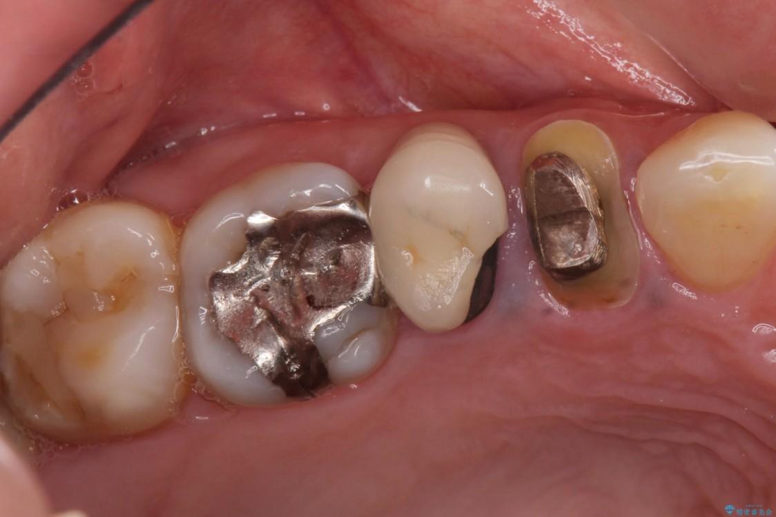 治療途中で放置していた歯 オールセラミッククラウンによる補綴治療 ビフォー
