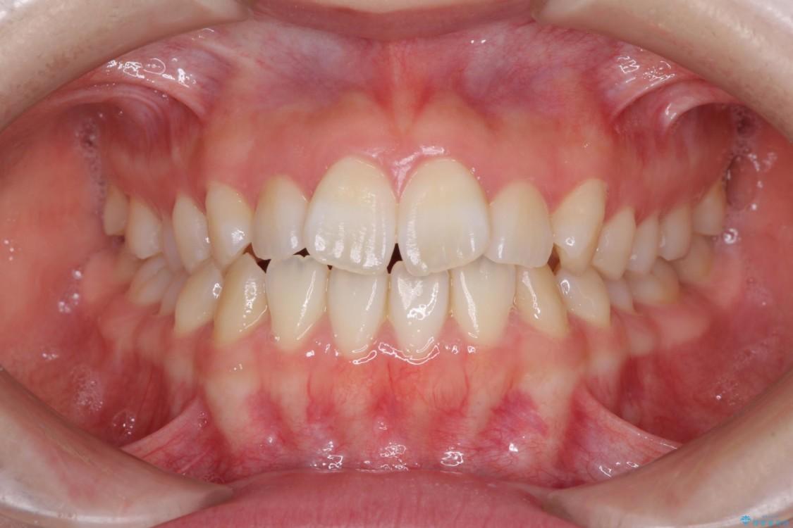インビザラインで気になる前歯を綺麗に整える ビフォー