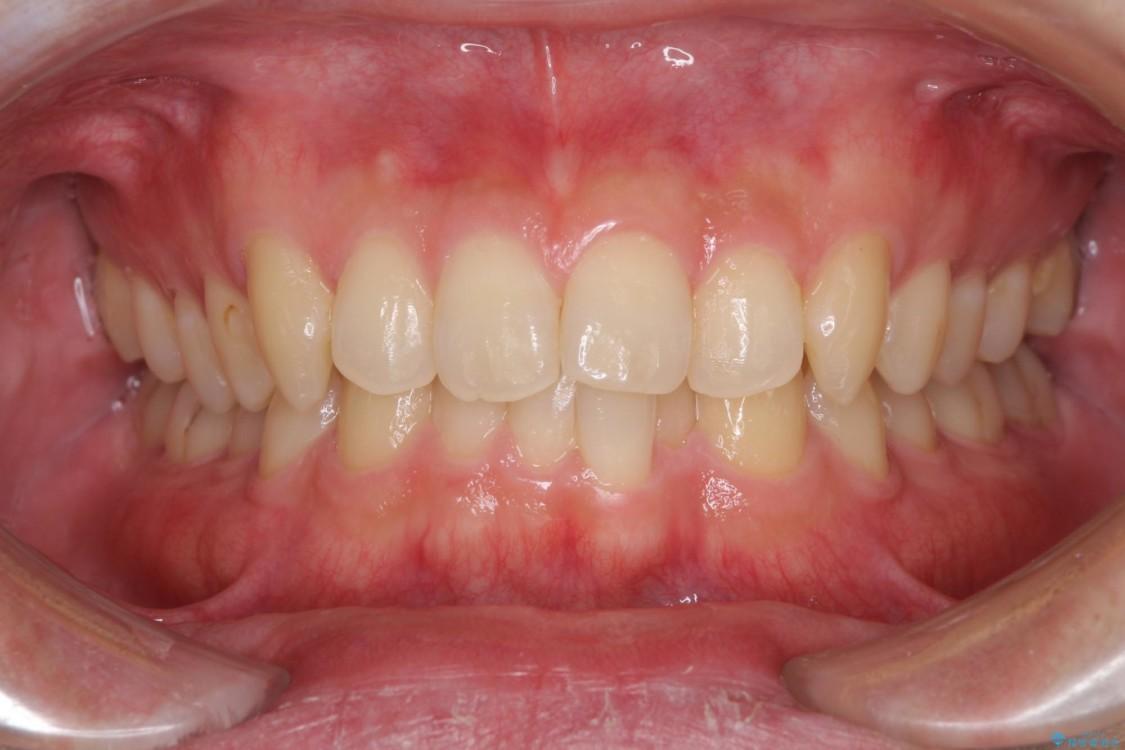 前歯の咬み合わせとデコボコを解消 インビザラインによる矯正治療 ビフォー