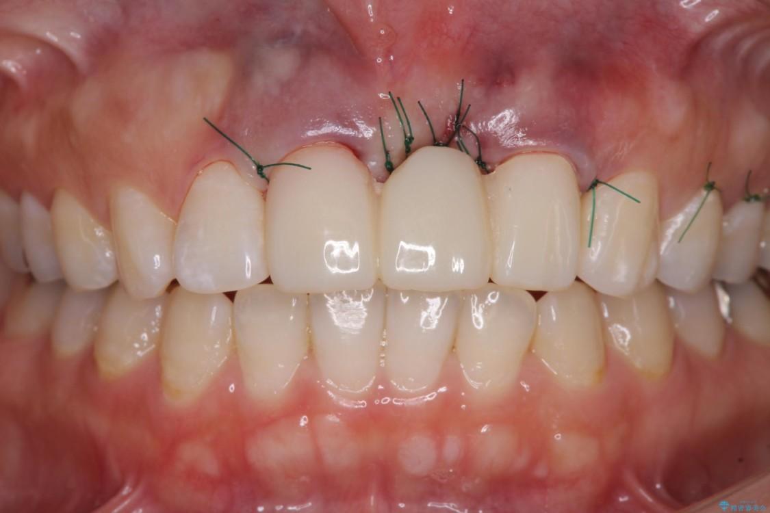 前歯のブリッジがアンバランス 歯肉移植術を併用した前歯のブリッジ 治療前画像