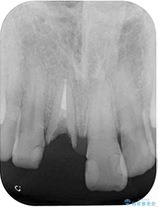 抜歯が必要な前歯 インプラントによる補綴治療 治療前画像