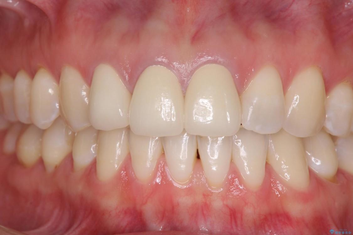 前歯の審美歯科治療 オールセラミッククラウンと下顎の部分矯正 アフター