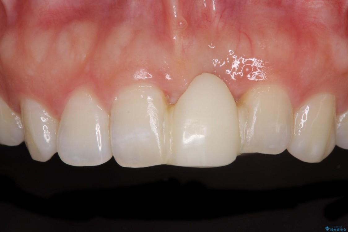 前歯のブリッジがアンバランス 歯肉移植術を併用した前歯のブリッジ ビフォー