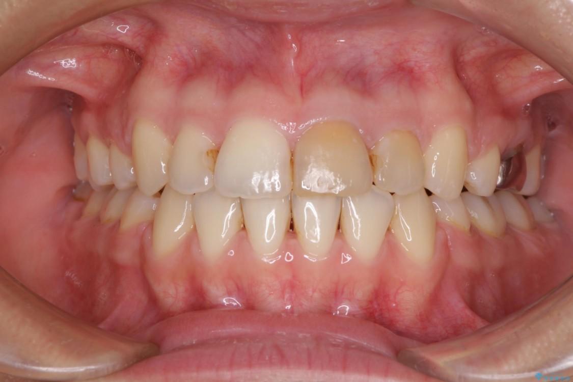 抜歯矯正で八重歯を改善 費用を抑えた装置 アフター