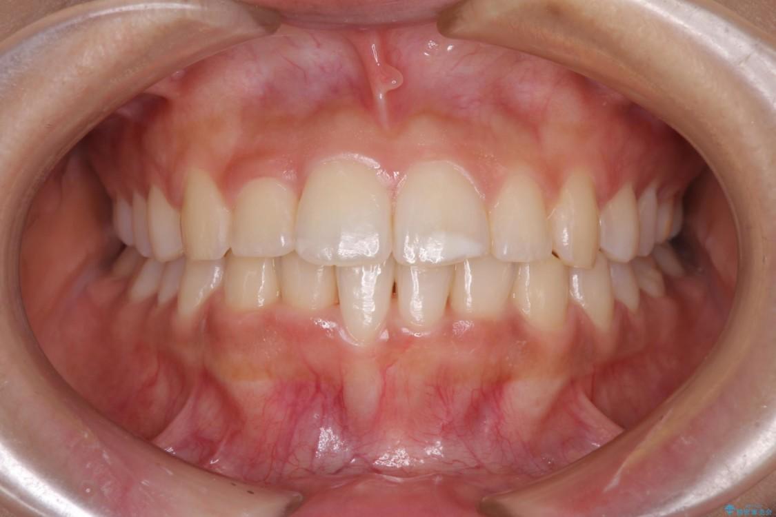 ワイヤー矯正で短期間での歯列矯正 アフター