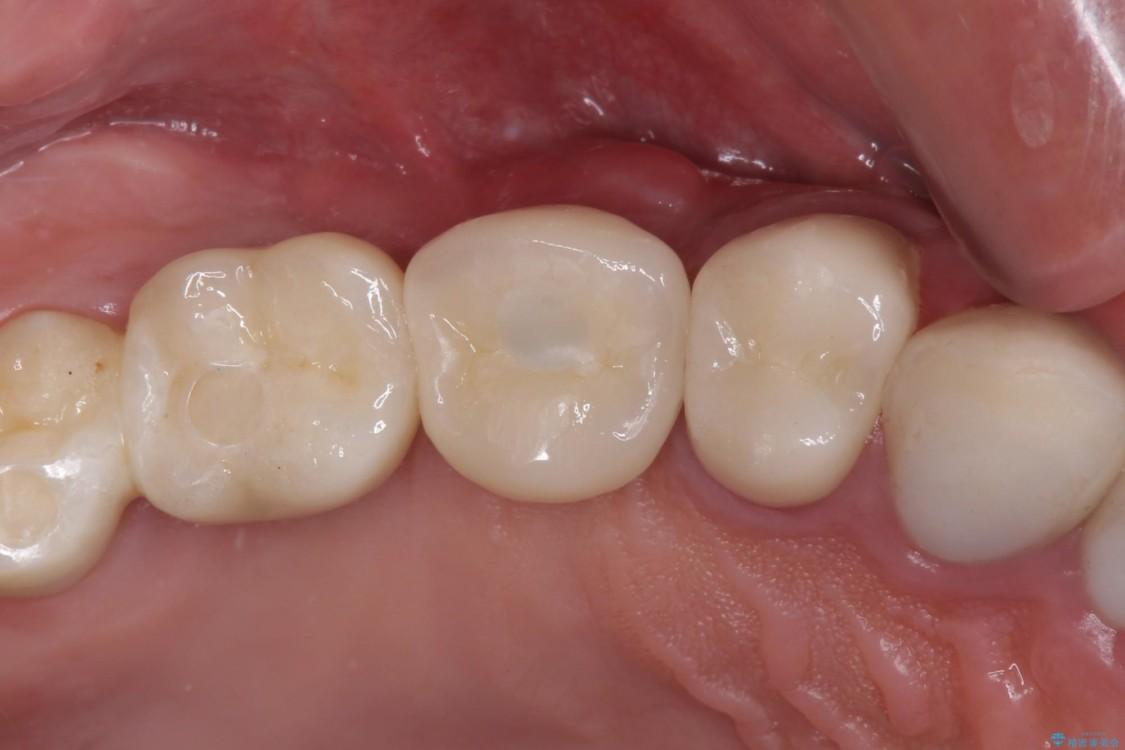 強い咬合力で折れてしまった歯 インプラントによる補綴治療 アフター