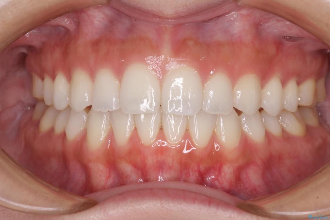 噛まない前歯を治したい インビザラインでの矯正治療 アフター