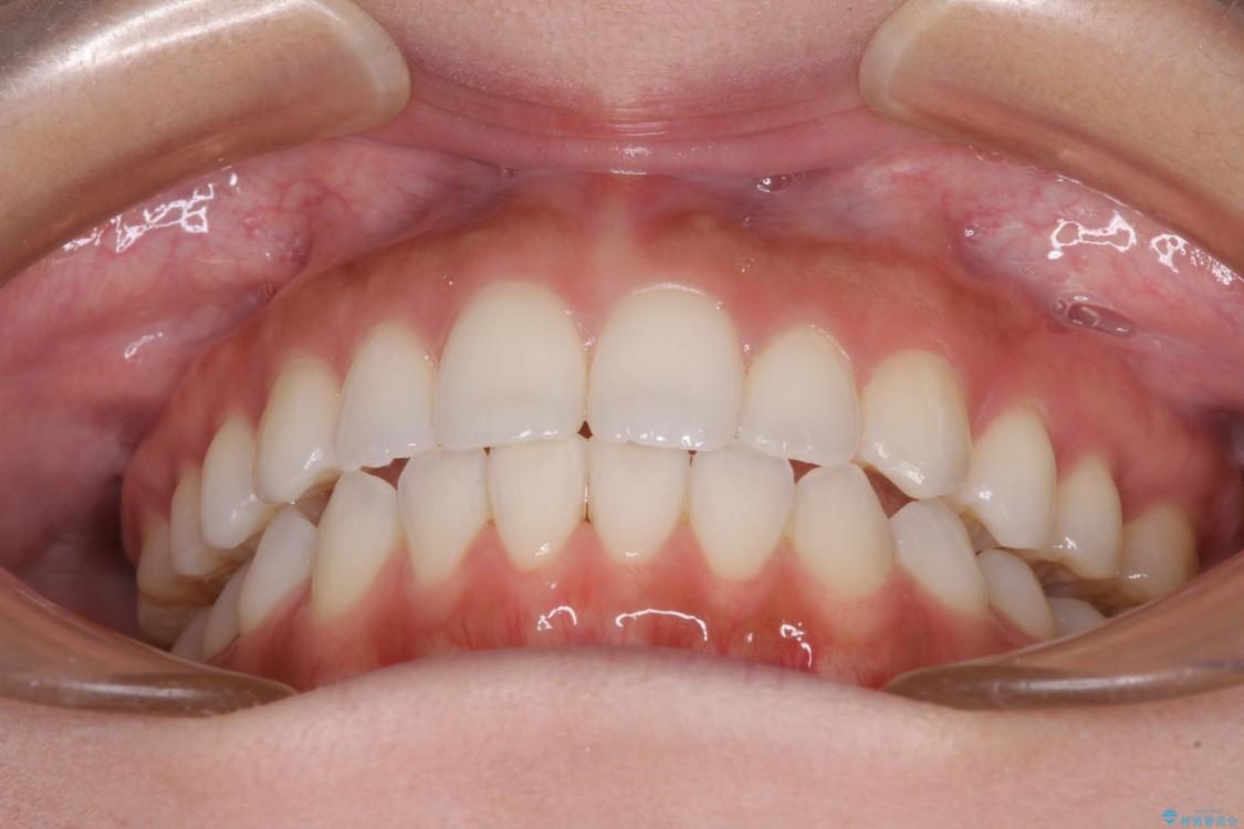噛まない前歯を治したい インビザラインでの矯正治療 治療後画像