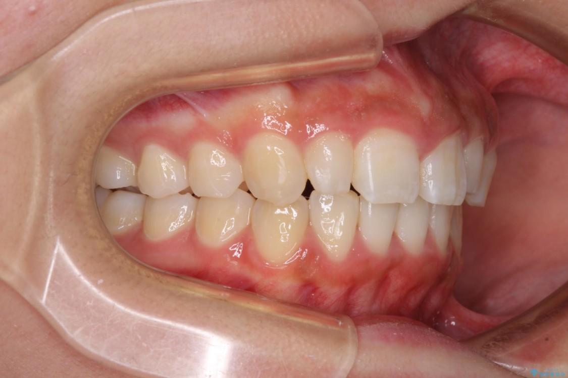デコボコの前歯を治したい インビザラインによる矯正治療 治療後画像