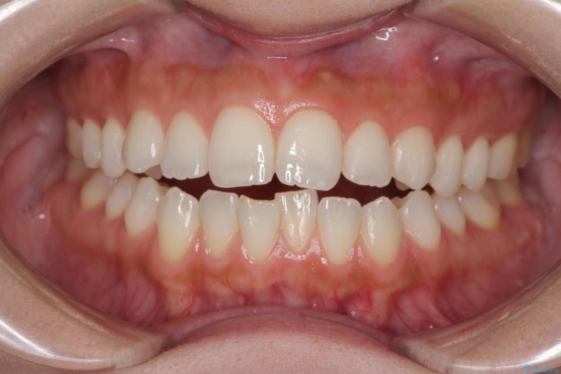 噛まない前歯を治したい インビザラインでの矯正治療 ビフォー
