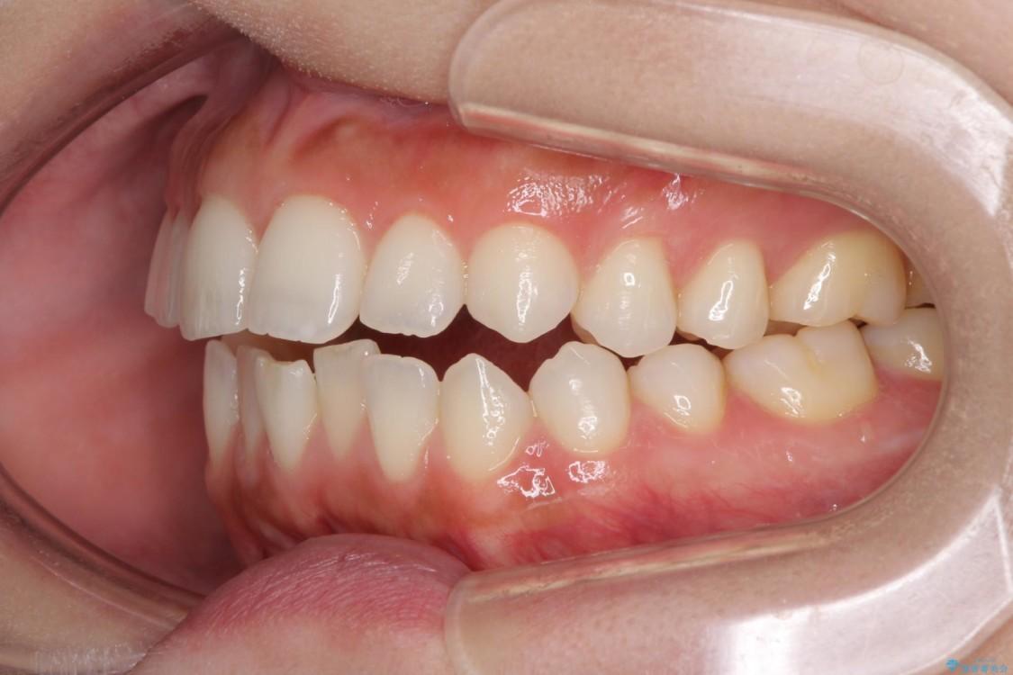 噛まない前歯を治したい インビザラインでの矯正治療 治療前画像
