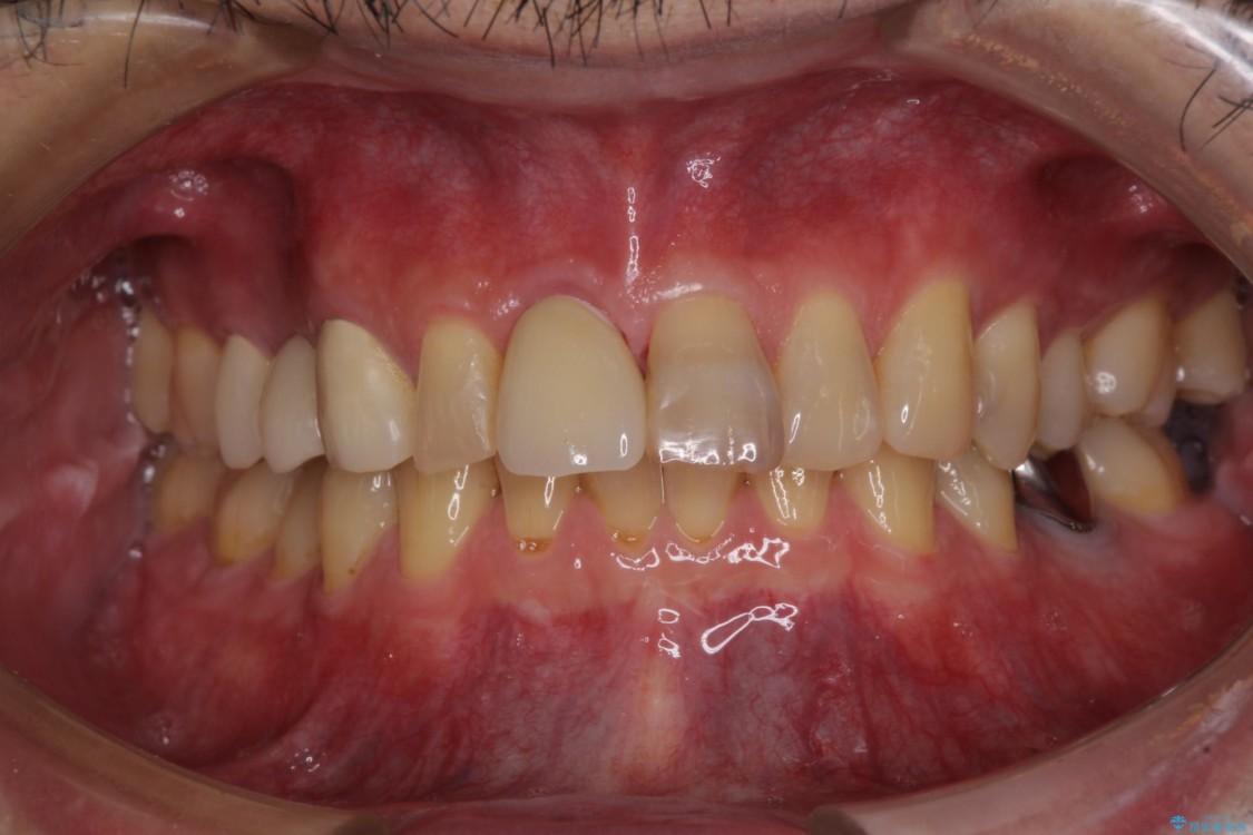 抜歯が必要な前歯 インプラントによる補綴治療 アフター