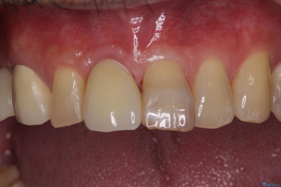 抜歯が必要な前歯 インプラントによる補綴治療 治療後画像