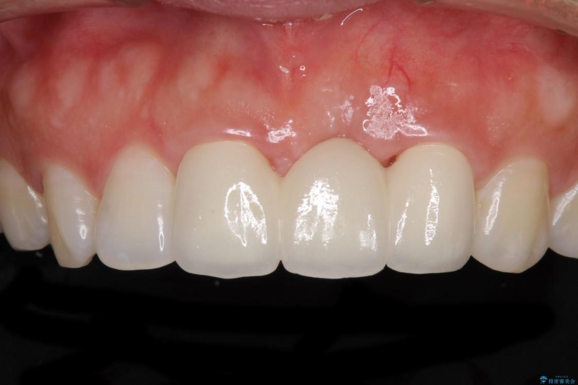前歯のブリッジがアンバランス 歯肉移植術を併用した前歯のブリッジ アフター