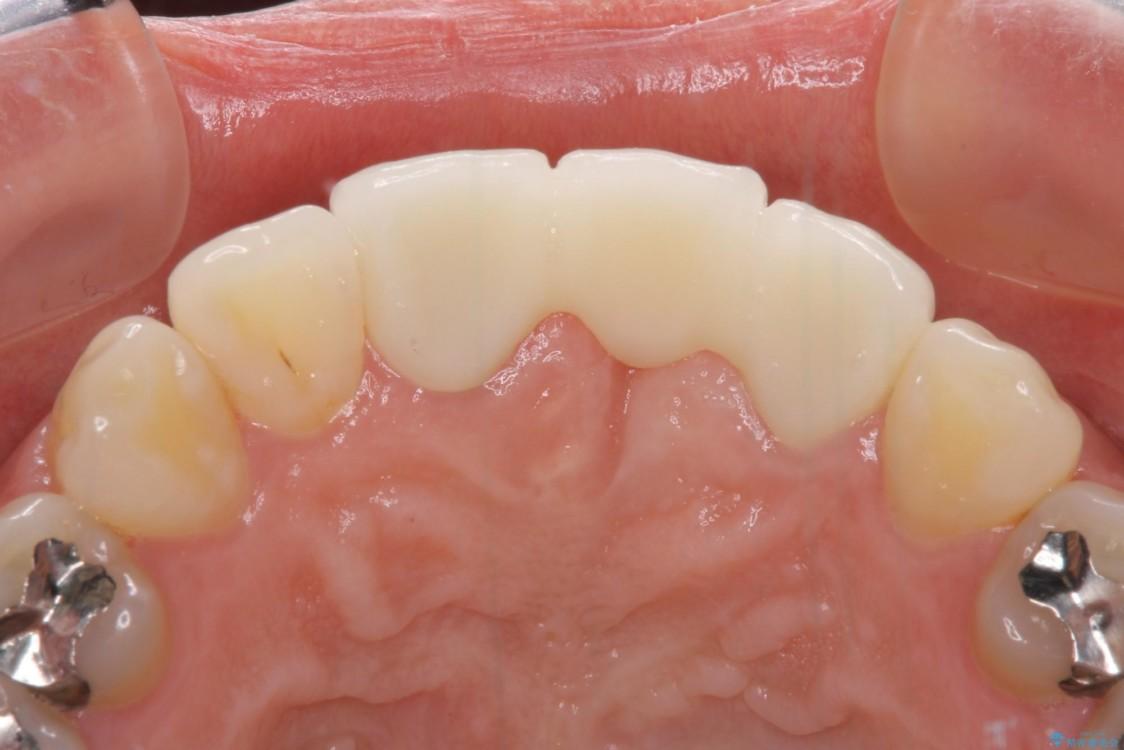 前歯のブリッジがアンバランス 歯肉移植術を併用した前歯のブリッジ 治療後画像