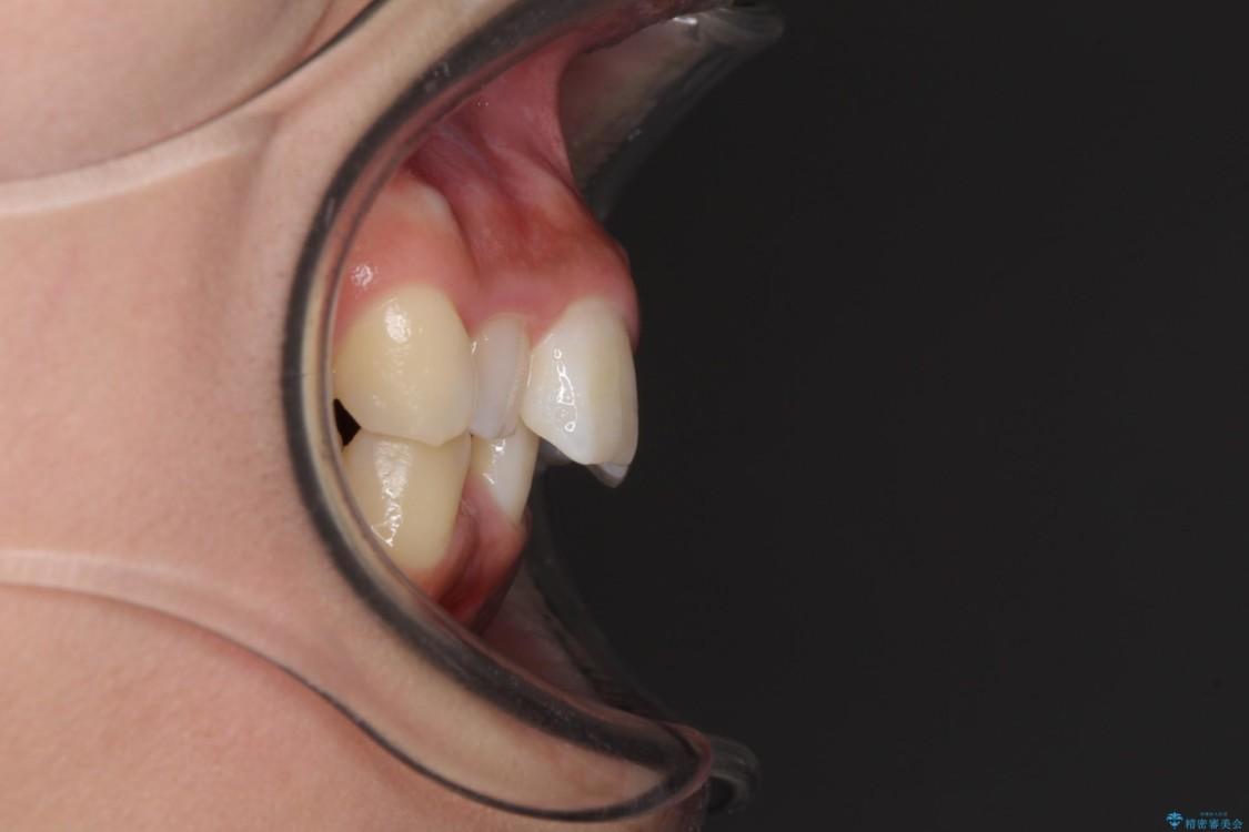 デコボコの前歯を治したい インビザラインによる矯正治療 治療前画像