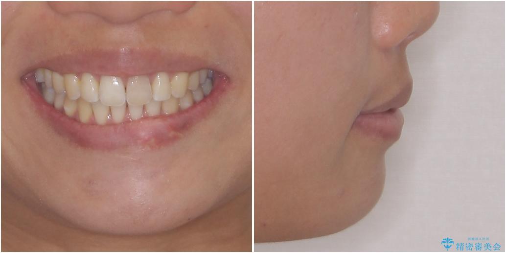 インビザライン矯正とオールセラミッククラウンで気になる前歯の治療 治療後画像