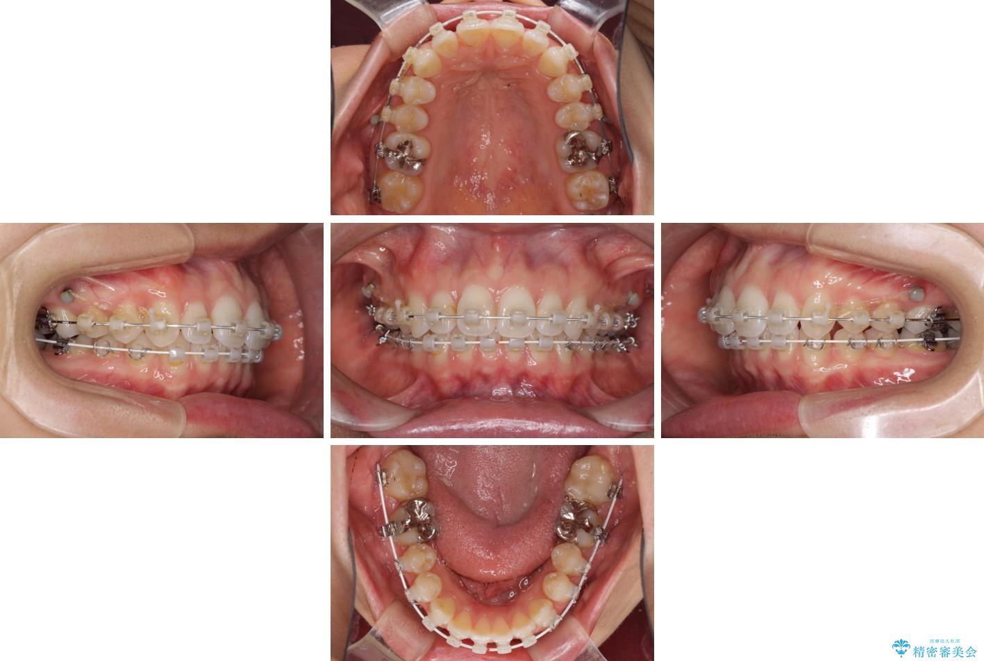 深い咬み合わせと奥歯のむし歯 総合歯科治療 治療途中画像