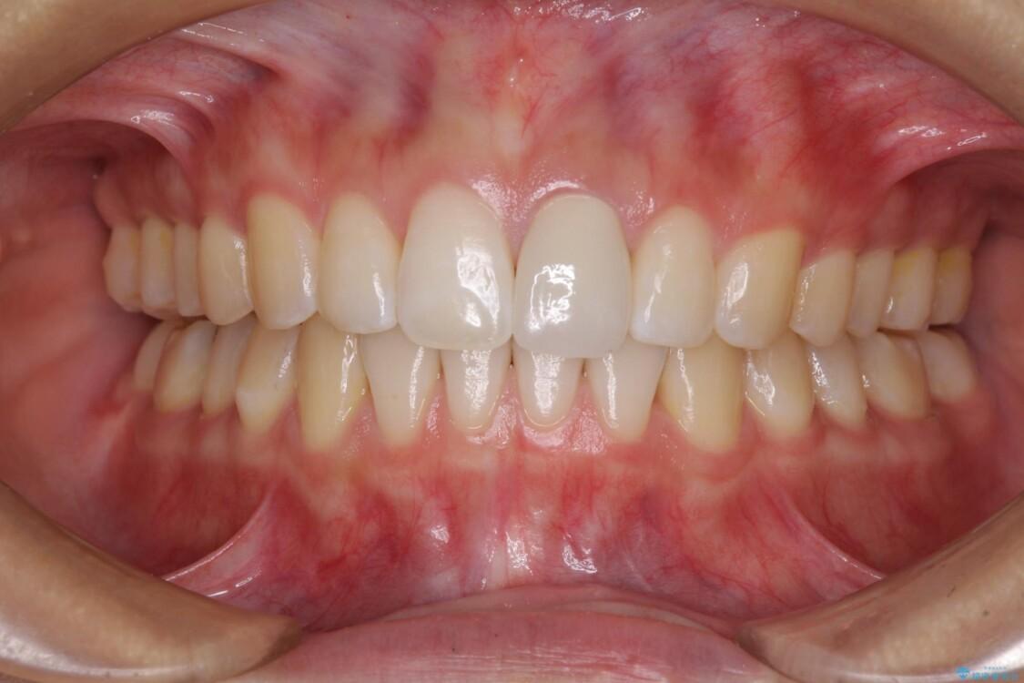 インビザライン矯正とオールセラミッククラウンで気になる前歯の治療 アフター