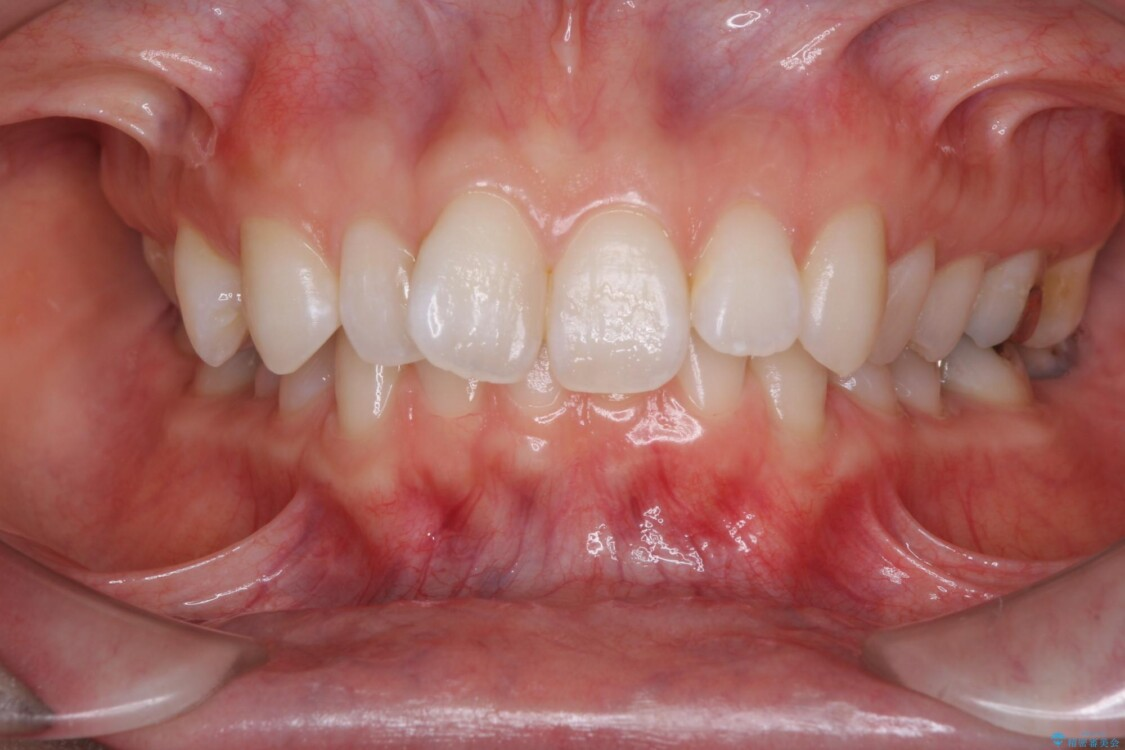 深い咬み合わせと奥歯のむし歯 総合歯科治療 ビフォー