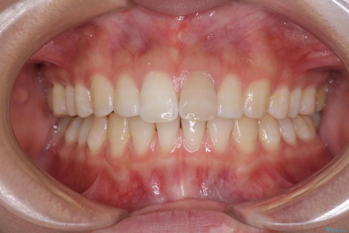 インビザライン矯正とオールセラミッククラウンで気になる前歯の治療 ビフォー
