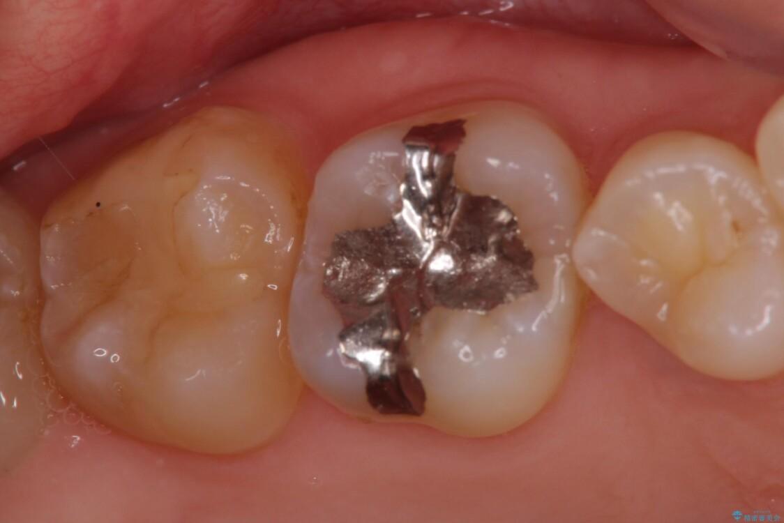 深い咬み合わせと奥歯のむし歯 総合歯科治療 治療前画像
