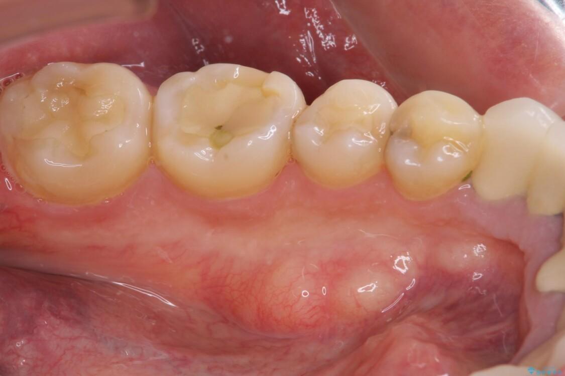 舌側の骨隆起切除とセラミックインレーによるむし歯治療 治療前画像