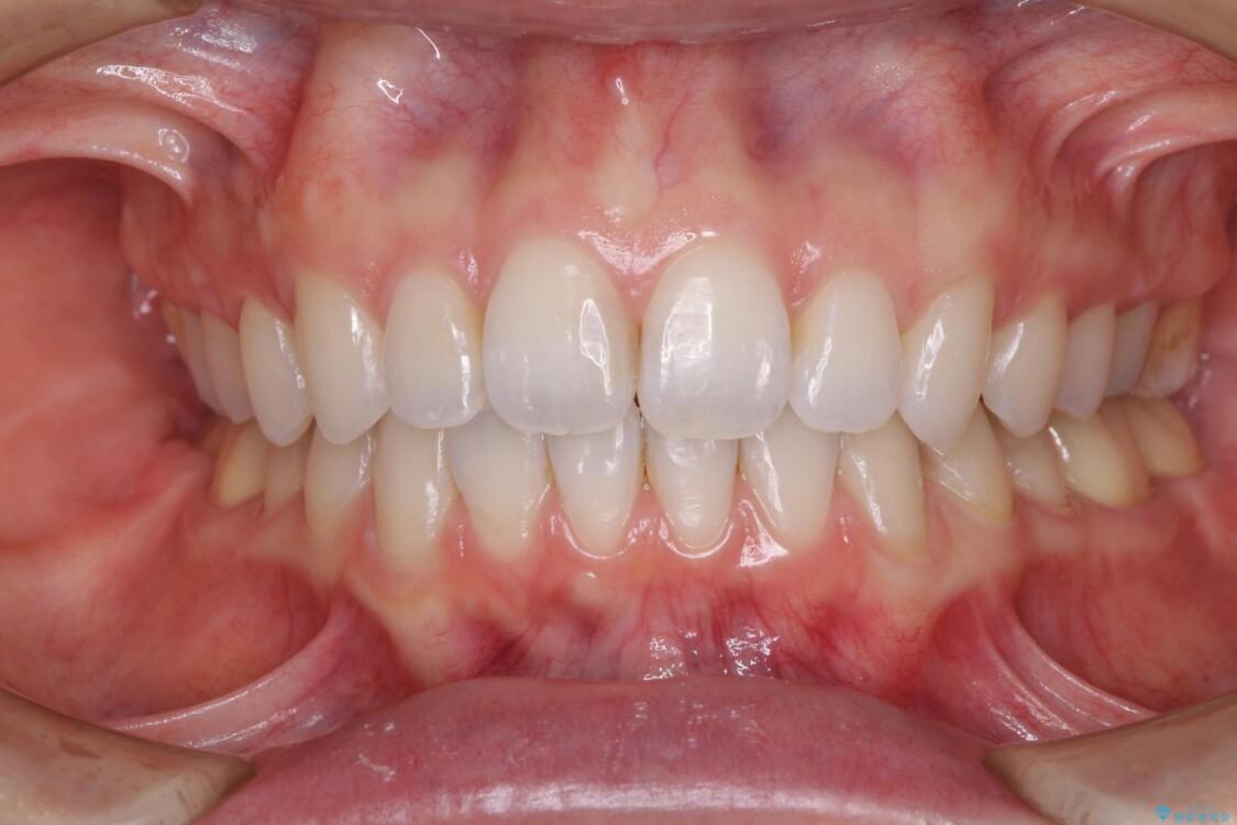 深い咬み合わせと奥歯のむし歯 総合歯科治療 アフター