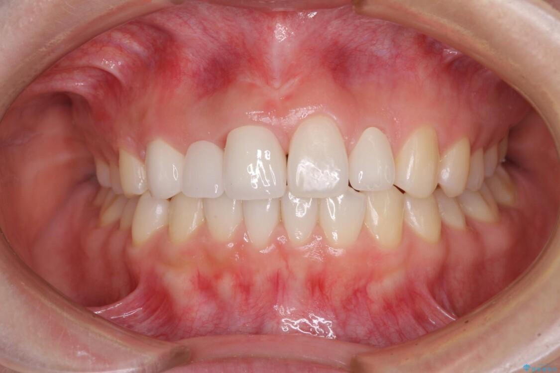 欠損歯と矮小歯 矯正治療と前歯のセラミック治療で理想的な歯列に アフター
