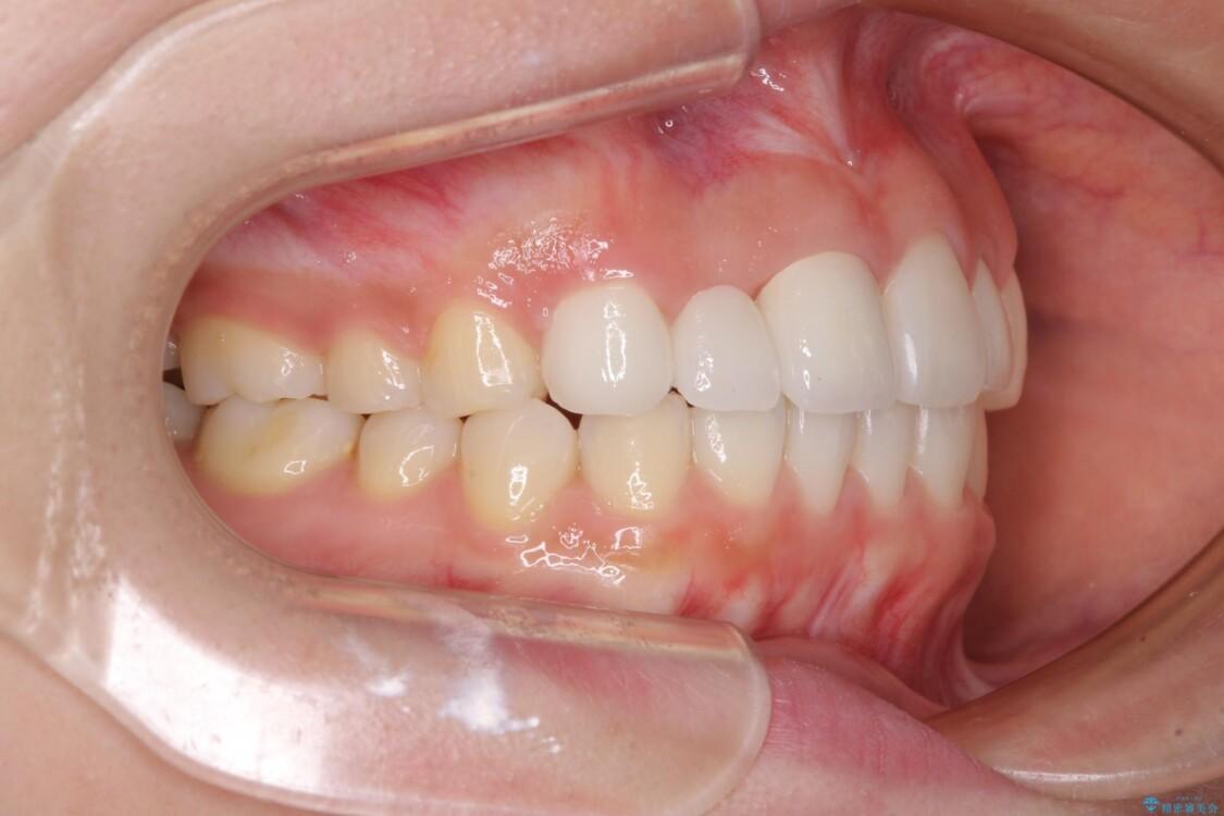 欠損歯と矮小歯 矯正治療と前歯のセラミック治療で理想的な歯列に 治療後画像