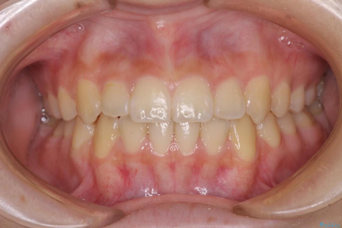 前歯のクロスバイト メタル装置での矯正治療 アフター