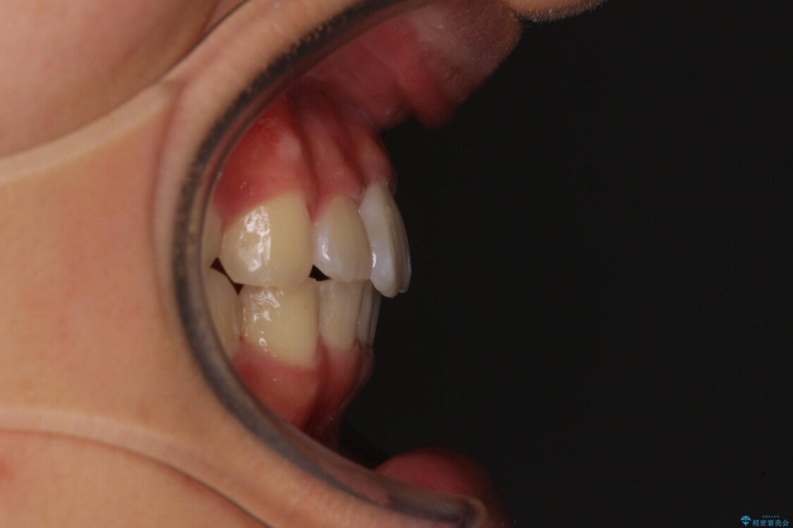 深い咬み合わせとデコボコ ワイヤー矯正で短期治療 アフター