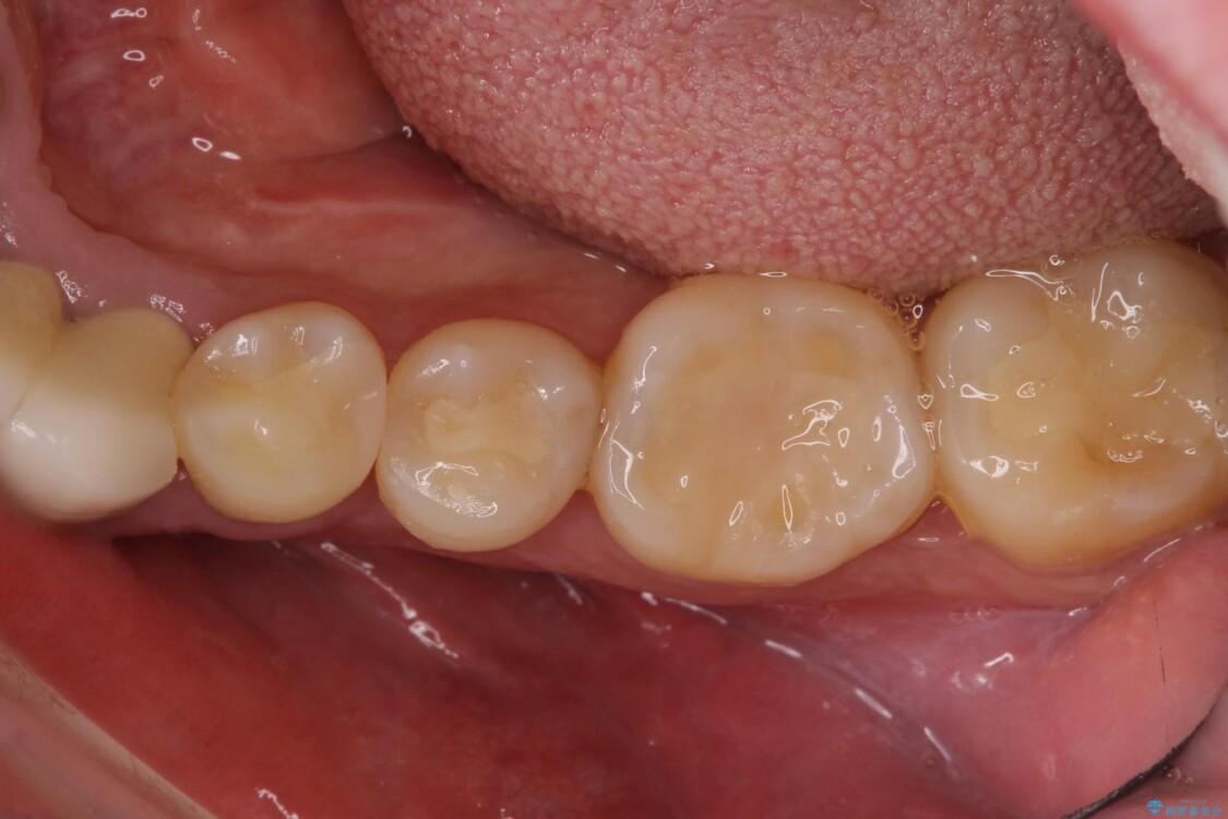 舌側の骨隆起切除とセラミックインレーによるむし歯治療 治療後画像