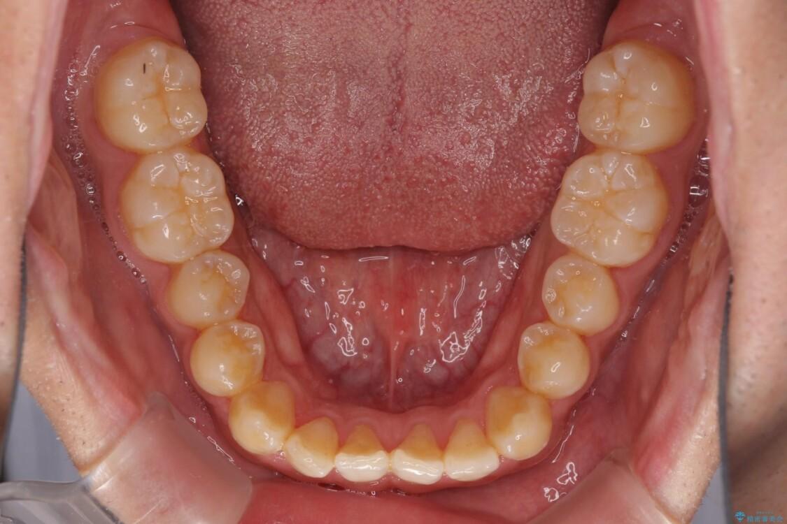 下顎前歯と上顎の部分矯正の適用例 アフター