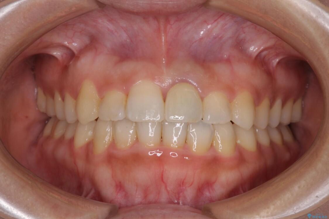 前歯のクロスバイトと変色をワイヤー矯正とセラミック治療で改善 アフター