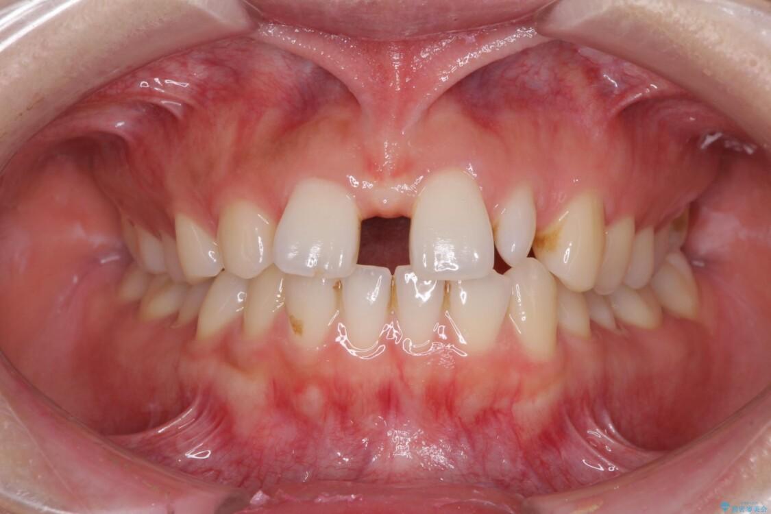 欠損歯と矮小歯 矯正治療と前歯のセラミック治療で理想的な歯列に ビフォー