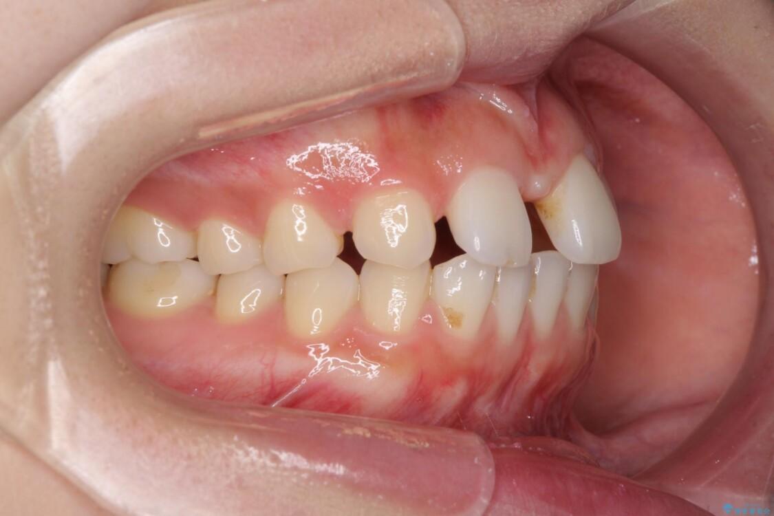 欠損歯と矮小歯 矯正治療と前歯のセラミック治療で理想的な歯列に 治療前画像