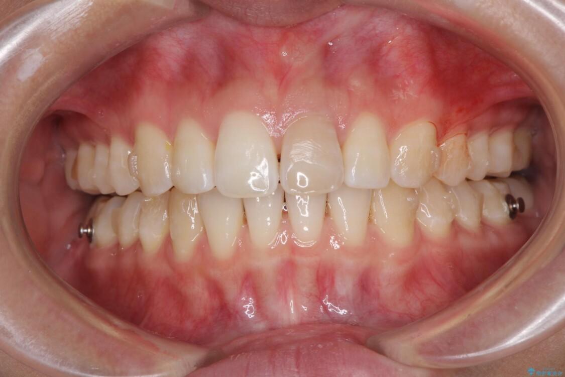 インビザライン矯正とオールセラミッククラウンで気になる前歯の治療 治療途中画像